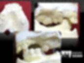 implante dentário antes e depois suzano