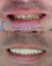 implante dentário implante suzano