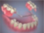 preço-implantes-dentarios-03