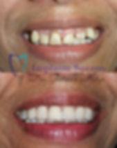 implantes suzano implantes dentários est