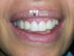 implante dentário antes e depois resultados