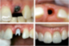 implantes-dentarios-implantes-suzano01