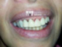 implante dentário antes e depois proteses02