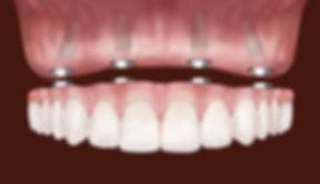 implantes-dentarios-implantes-suzano04