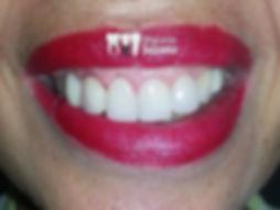 implante dentário antes e depois