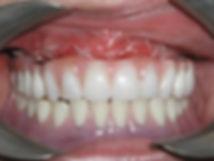 Implante Dentario Carga Imediata 02