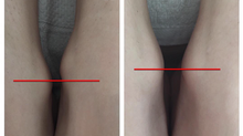 Beckenschiefstand und Beinlängendifferenz