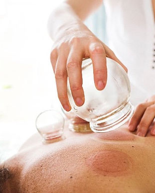 what-is-cupping-therapy-259596-1528110698780-main_edited.jpg