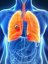 lung-cancer (1).jpg