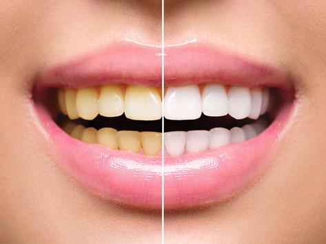 Teeth Whitening - Don't Let dark teeth age you down!