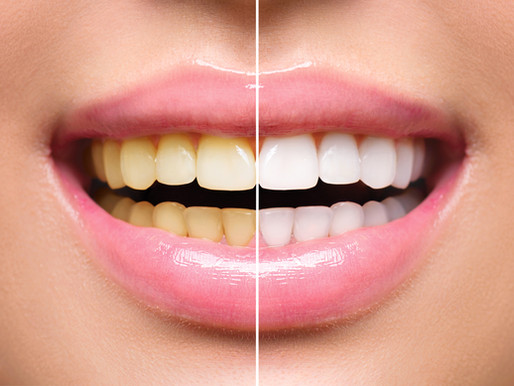 Teeth Whitening - Don't Let dark teeth age you down!