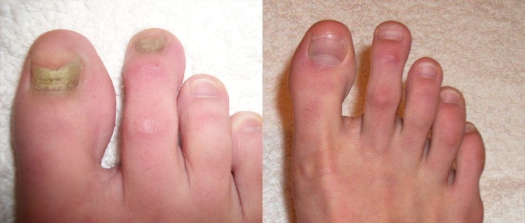 What You Should Know About Toenail Fungus Home No More Toe Fungus
