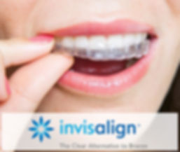 Invisalign Dr Perry Jones