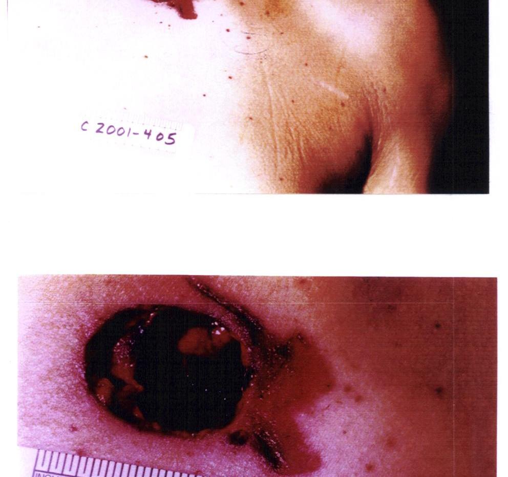 410 wound.jpg