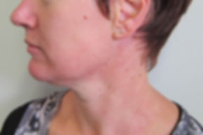neck rejuvenation
