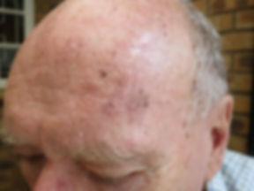 TCA Spot pigmentation