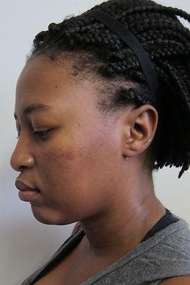 acne scars dermapen results