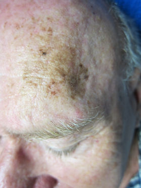 spot pigmentation treatment
