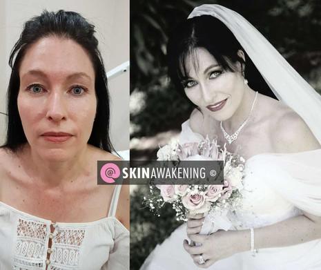 @SKINAWAKENING Before and on the Big Day Wedding make-up and skin treatment.