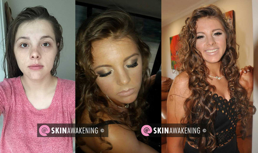 @SKINAWAKENING Before and After skin cleanse and make up for matric dance.