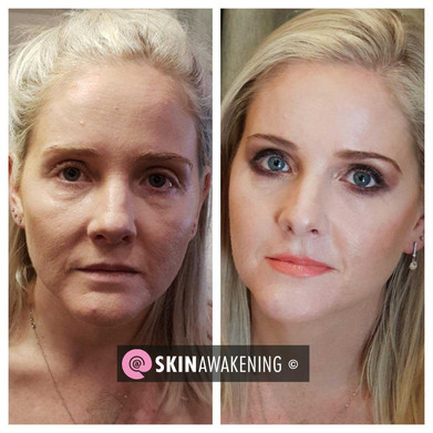 @SKINAWAKENING Before and After treatment and make over.