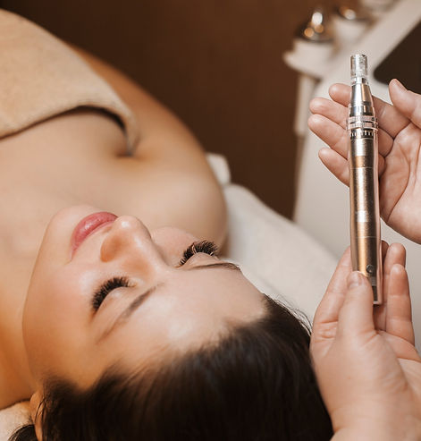 Microneedling by Skinfuture