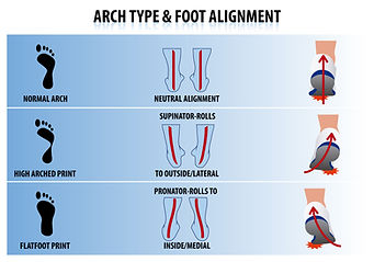 Arch type & foot alignment