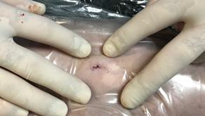 Miért nyílhat szét egy műtéti seb?