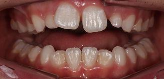 Children teeth,intraoral view_edited.jpg