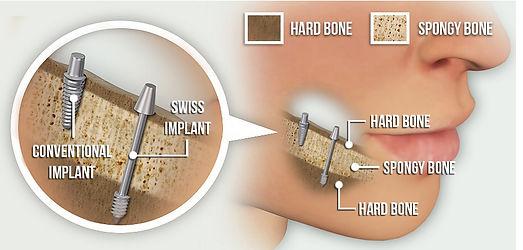 המרכז להשתלות שיניים ואסתטיקה - השתלה בזאלית