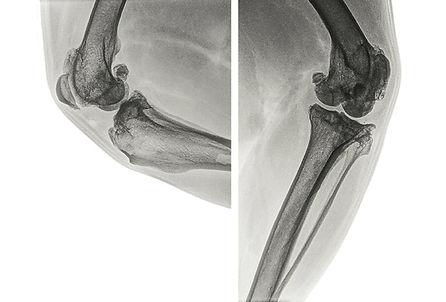 arthritisWhite.jpg
