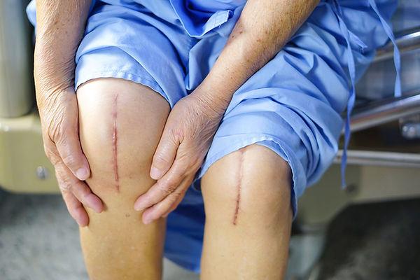 Knee replacement.jpg
