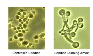 round candida cells and candida cells with tails