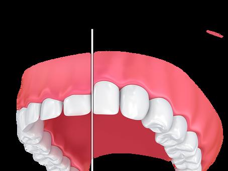 Gummy Smile Correction Using Water Laser Technology