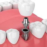 dental-implant-graphic-min.jpg