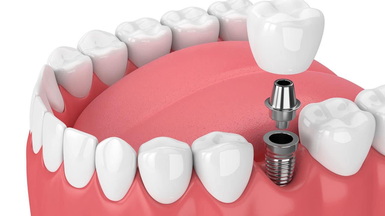 Implants Consultation