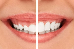 NEWS-blog-gummy-smile-gum-lift.jpg
