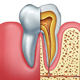 IMG-root-canal-GettyImages-924927726.jpg