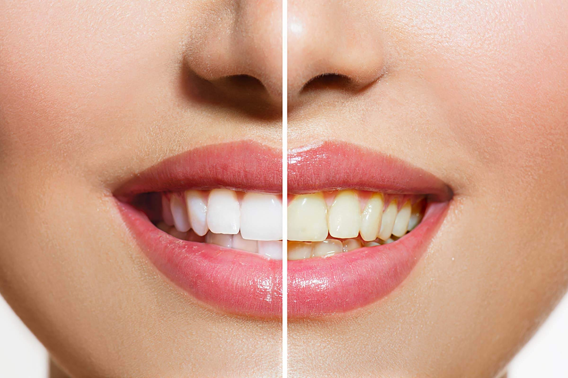 Teeth Whitening Session