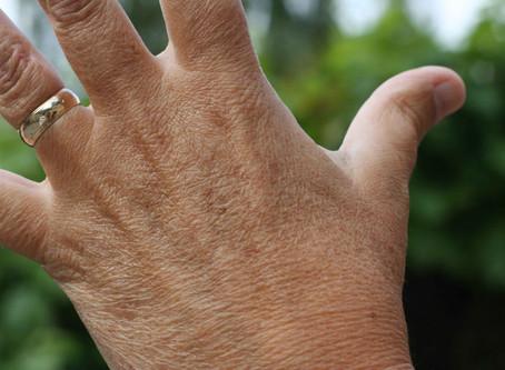 Understanding Our Skin