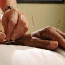 Are there any side-effects to acupuncture?