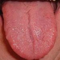 Why does Dr. Kong look at my tongue and take my pulse?