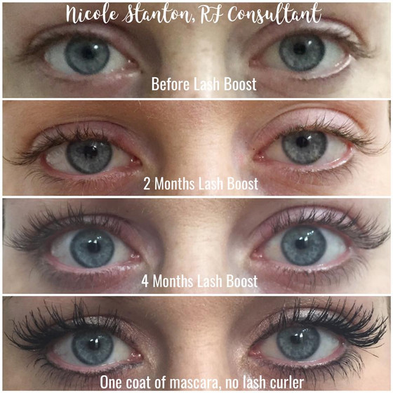 Lash Boost Giveaway!