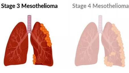 Stage 3 Mesothelioma