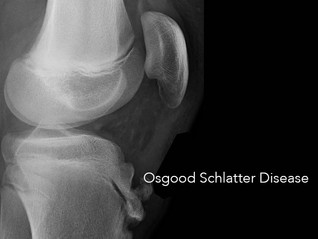 Growing Pains May Be Osgood-Schlatter's
