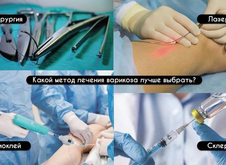 Какой метод лечения варикоза самый лучший?