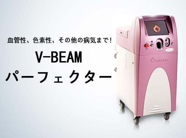 V-beam perfecta