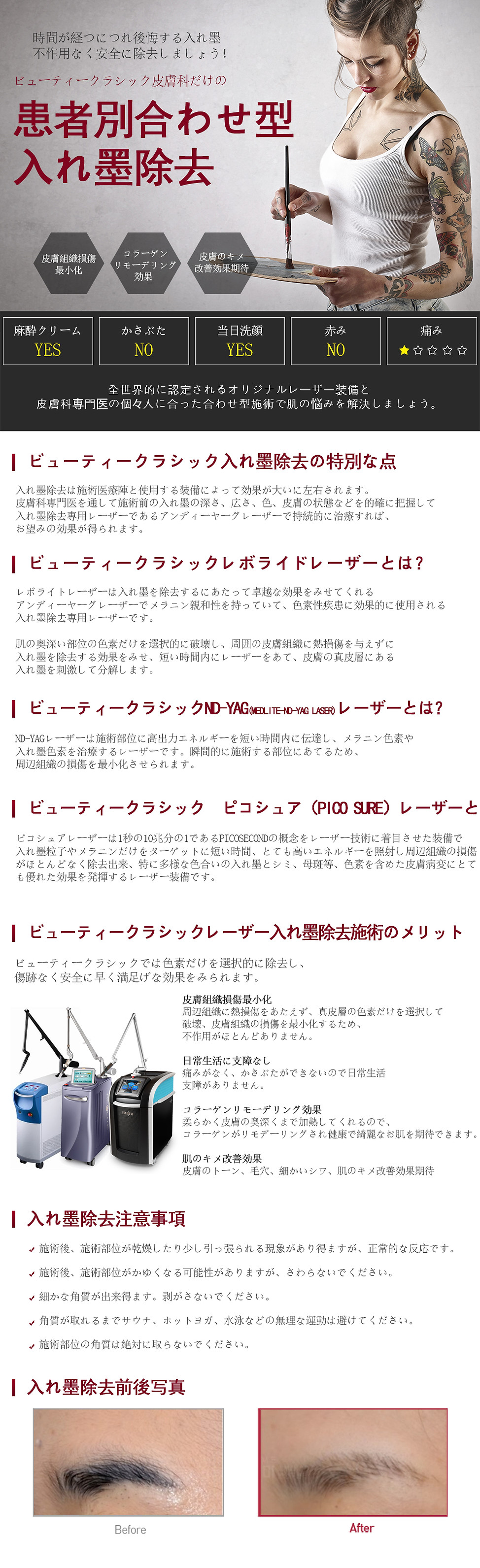 문신제거_일본어.jpg