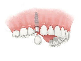 dental-implant-single.jpg