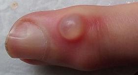 Myxoid-cyst-left-index.jpg